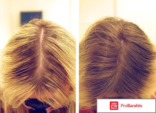Плазмотерапия волос