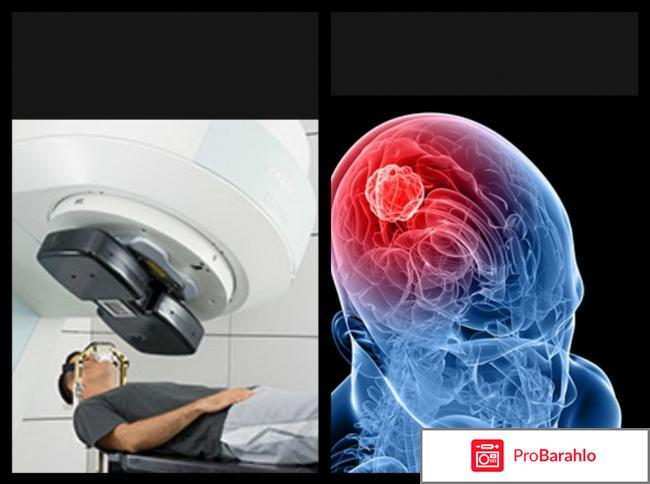 Можно ли победить рак головного мозга? отрицательные отзывы