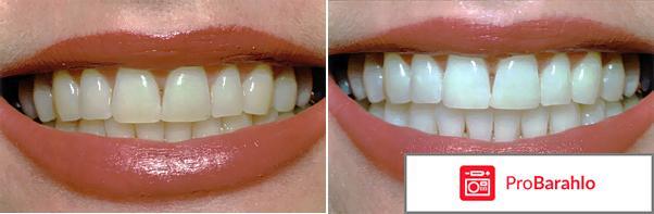 Вайт Минт - пенка для отбеливания зубов