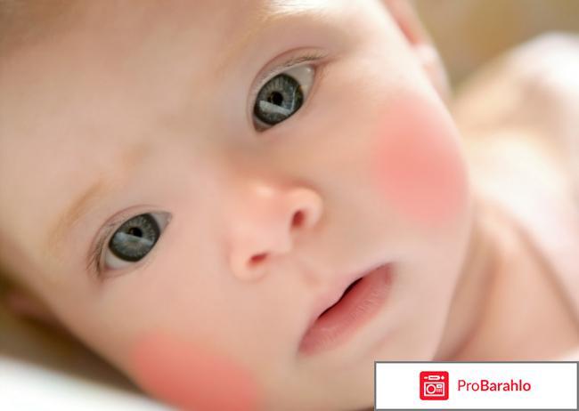 Диатез у ребенка симптомы