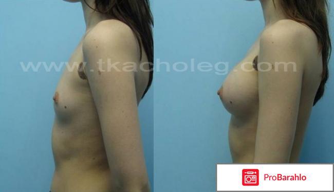 Увеличение груди фото отрицательные отзывы