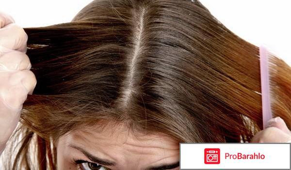 Шампунь для жирной кожи головы отзывы