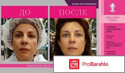 Рекосма отзывы фото до и после цена обман