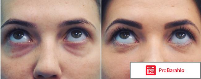 Нижняя блефаропластика фото до и после отзывы отрицательные отзывы