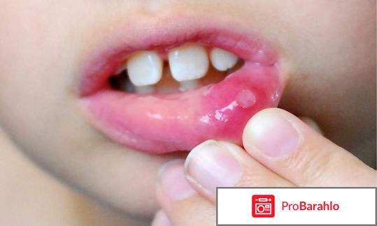 Стоматит у взрослых: симптомы и лечение фото обман