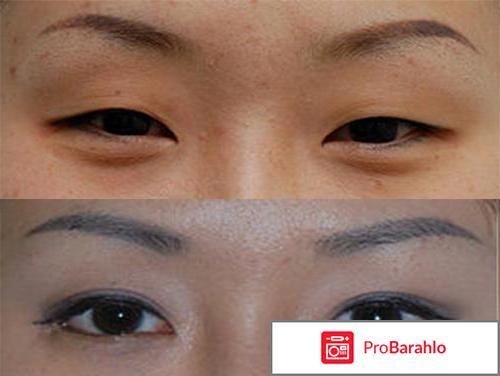 Нижняя блефаропластика фото до и после отзывы обман