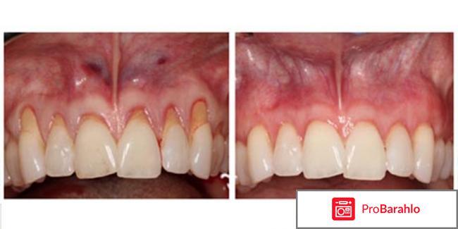 Вайт Минт - пенка для отбеливания зубов отзывы владельцев