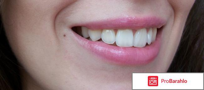 Ультразвуковая зубная щетка Asahi Irica AU300E фото